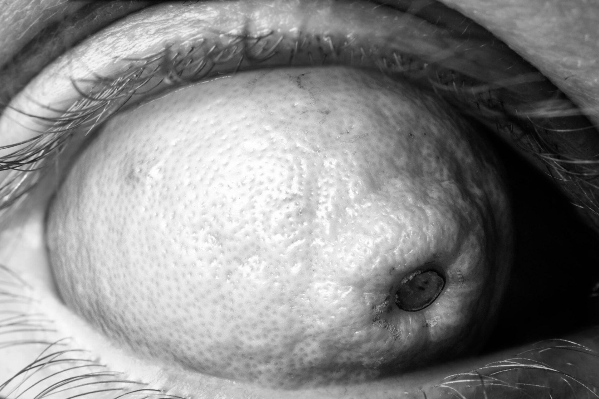 L'eye'mon