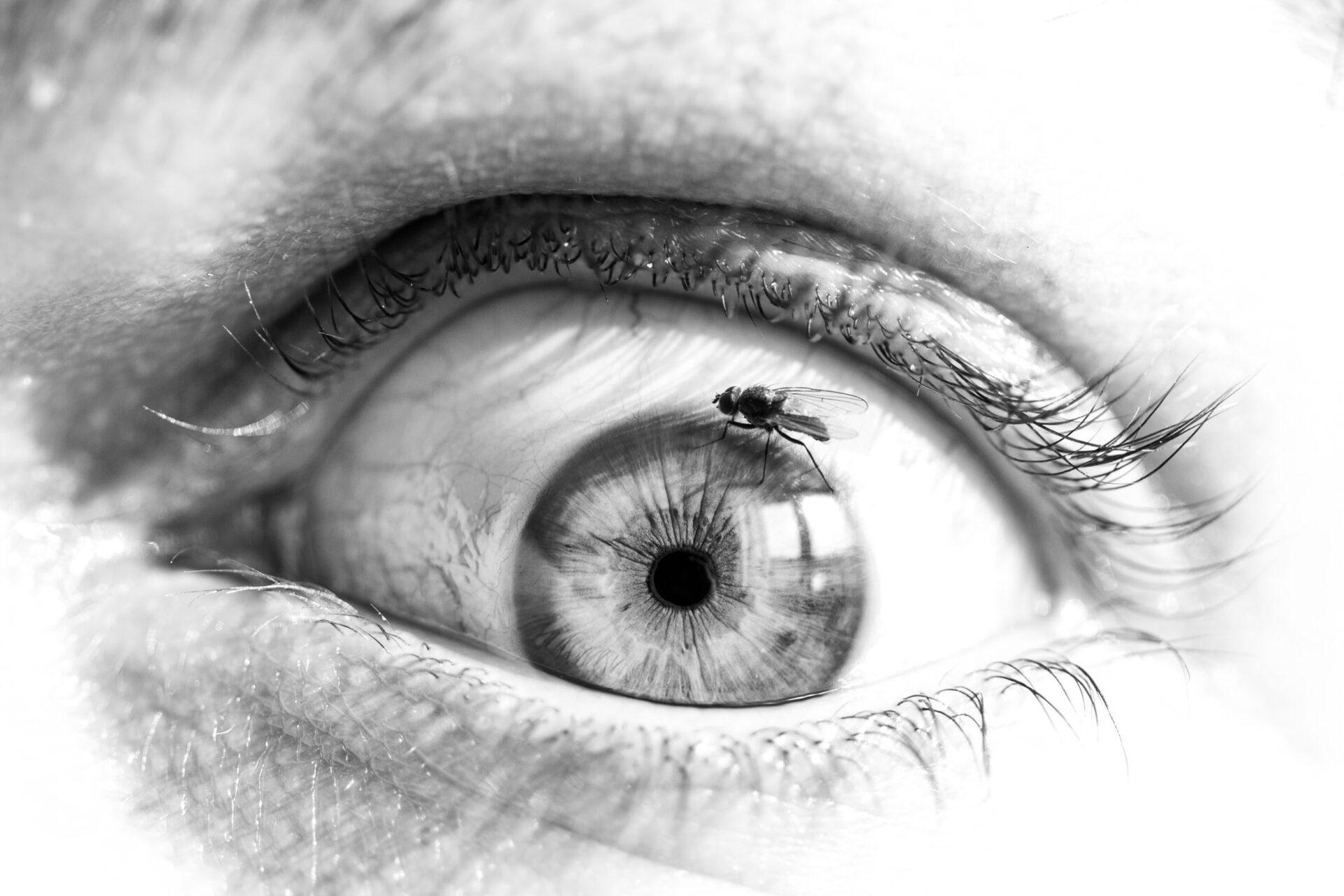 Fl'eye'